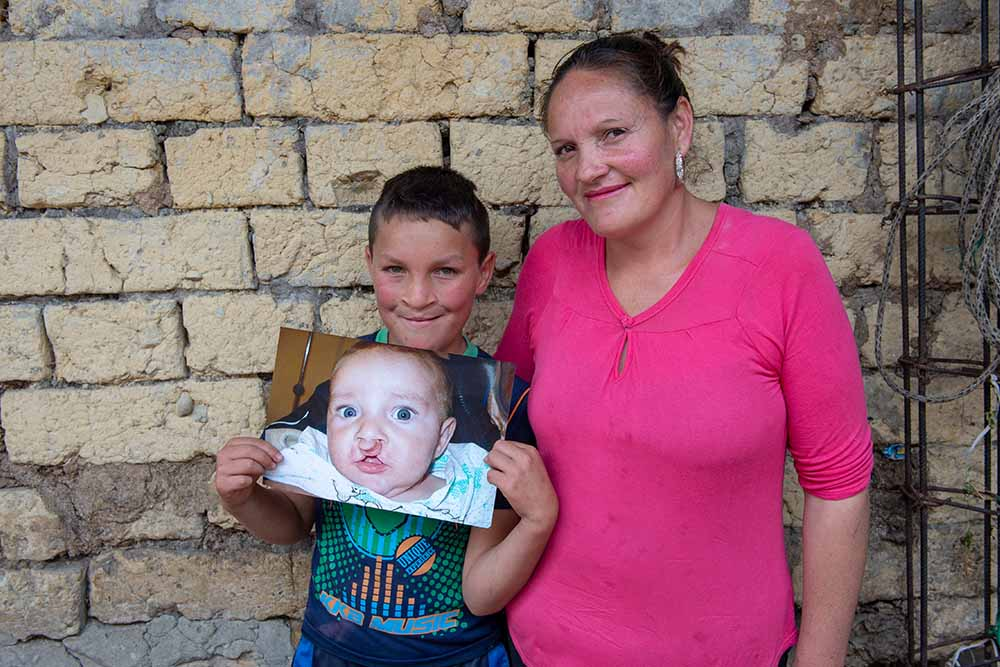 Neitan holding an image of himself before cleft lip surgery with his mom