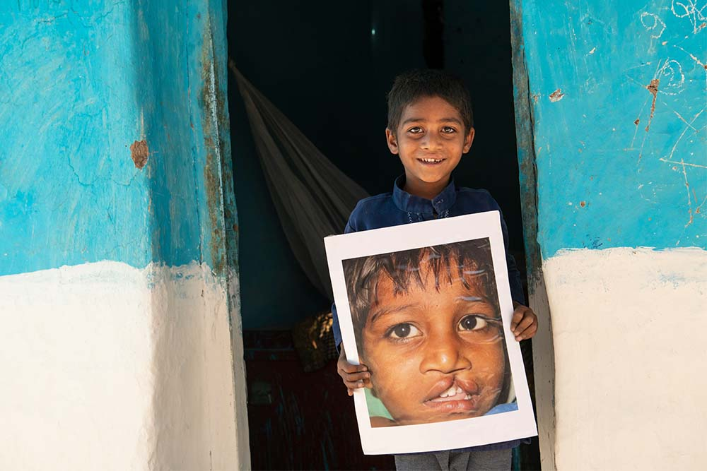 Sahil holds the image of himself before cleft lip surgery in front of home