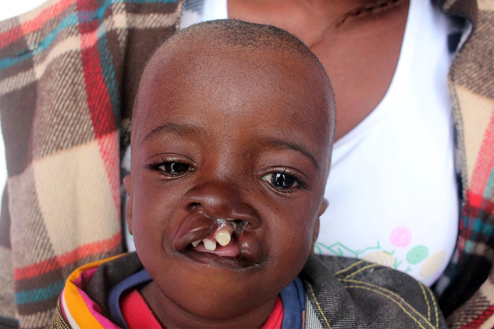 Samson with an untreated cleft lip