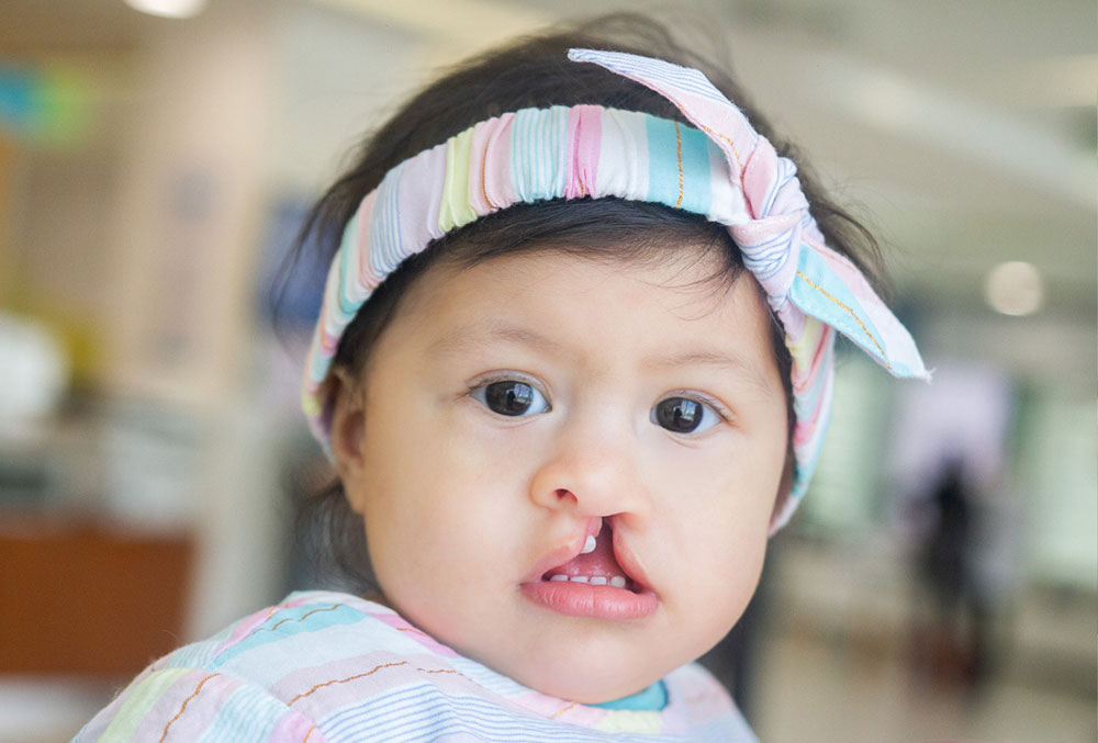Gianna before her cleft lip and palate surgery, but after her mother received guidance on how to feed her.