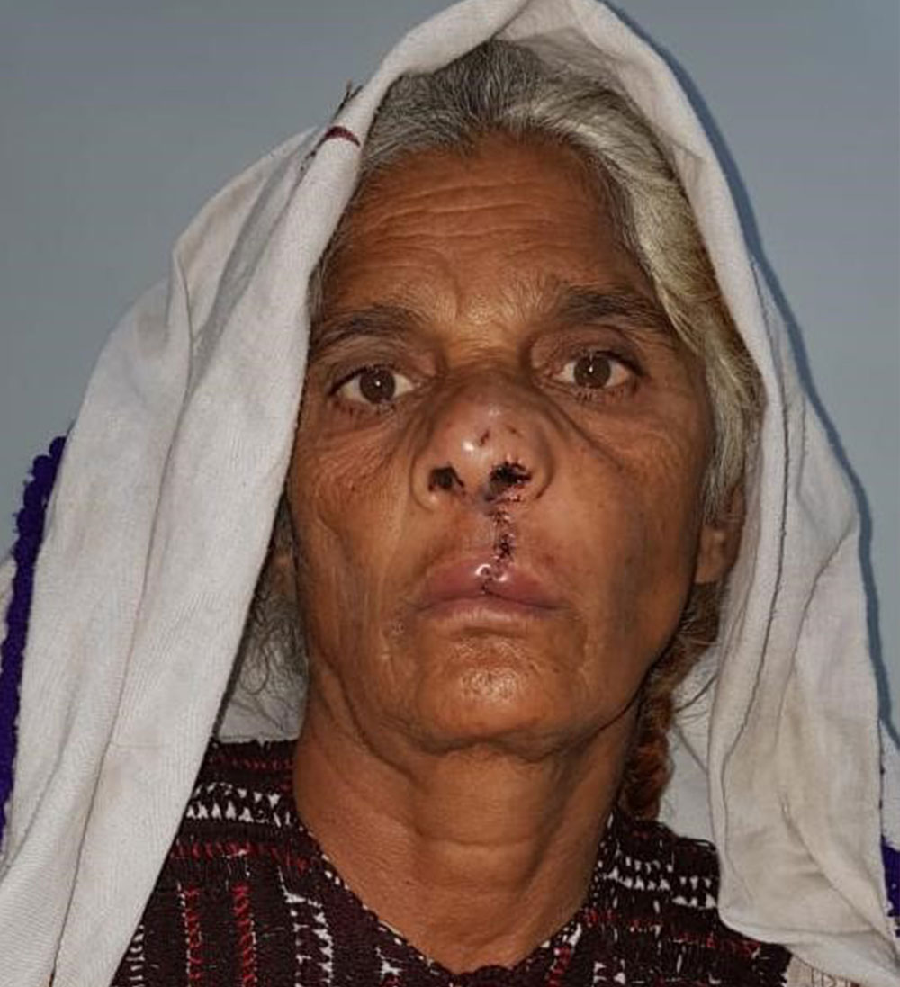Pyari after her cleft lip and cleft palate surgery at age 70