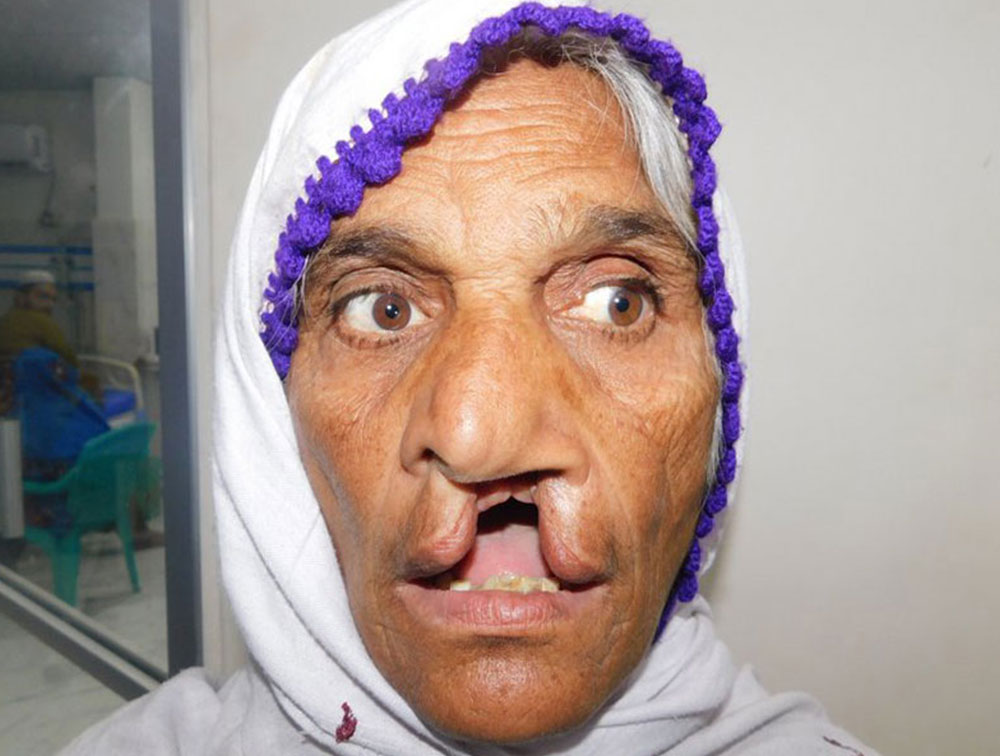 Pyari before her cleft lip and cleft palate surgery at age 70