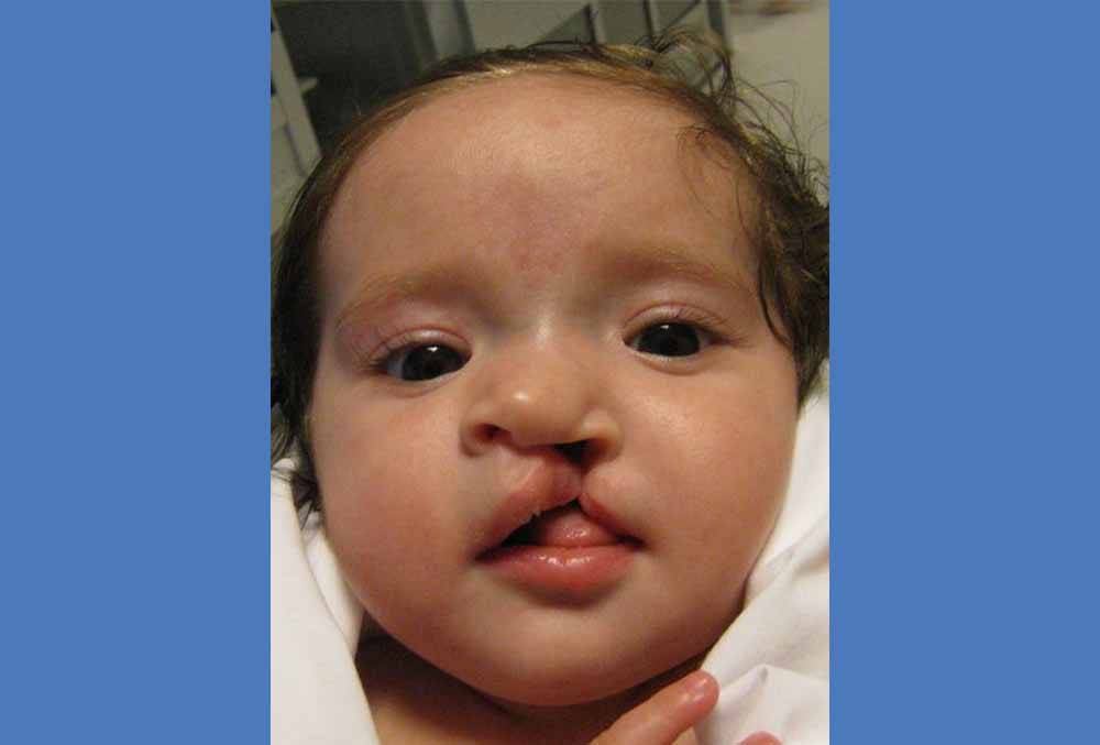 Mia before cleft surgery