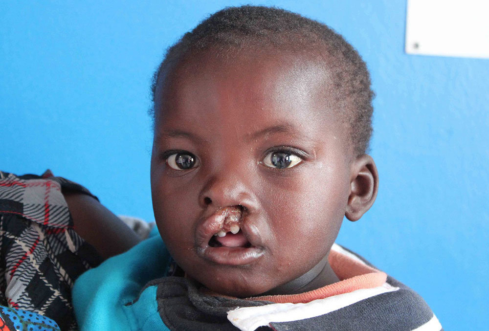 Oscar before free cleft lip and palate surgery in Zambia.