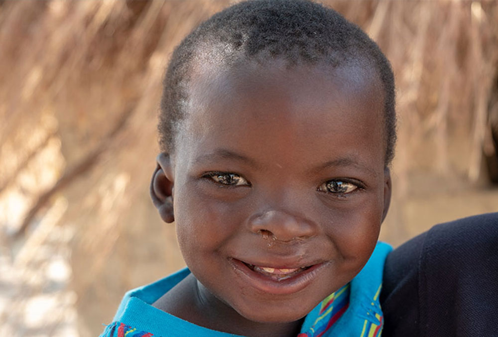 Close-up of Oscar's face and brilliant smile following his free cleft lip and palate treatment sponsored by Smile Train in Zambia.