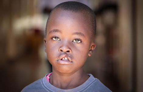 a boy from Kenya with untreated cleft