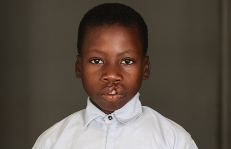 Nkunda before cleft surgery