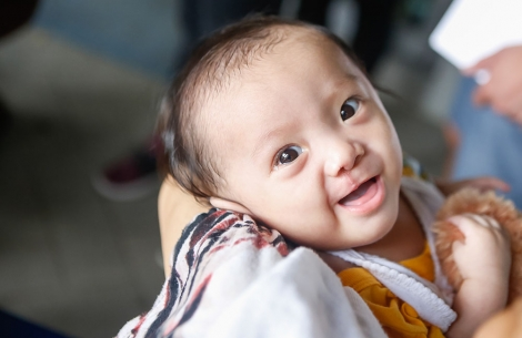 Child smiling to camera after cleft lip surgery
