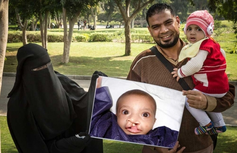 Habeeba's family holds image of her before cleft surgery