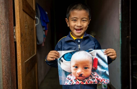Jenious at his home holding an image of himself before cleft surgery