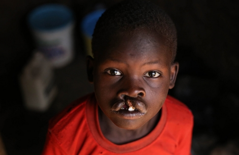 Kamse living with an untreated cleft lip in Kenya