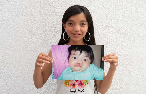 Teenager Maria holds an image of herself as a baby before her cleft surgery