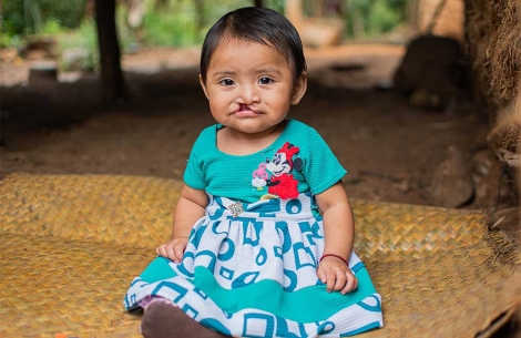 Mirian sits in a dress with untreated cleft lip