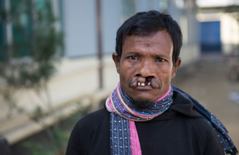 Mohammad at refugee camp living with an untreated cleft lip