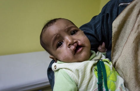 Rawda in her mother's arms before cleft surgery