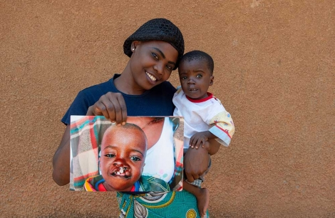 Samson's mom hold an image of Samson before cleft surgery