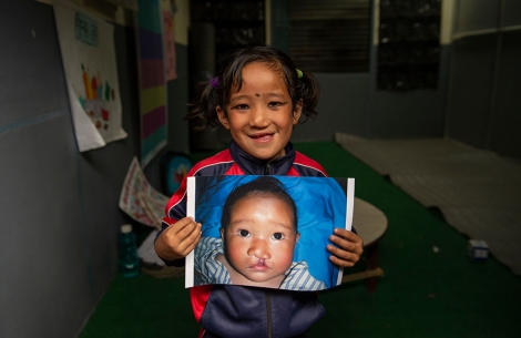 Sushila holds the image of herself before cleft surgery