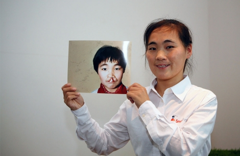 Wang Li, Smile Train's first patient, holds her before cleft surgery image