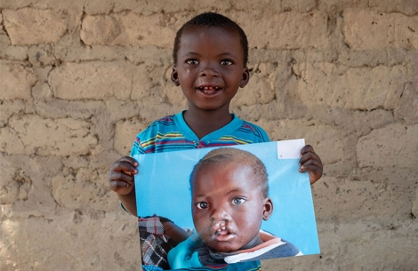 Oscar holding a picture of himself before free Smile Train cleft lip and plate surgery in Zambia.