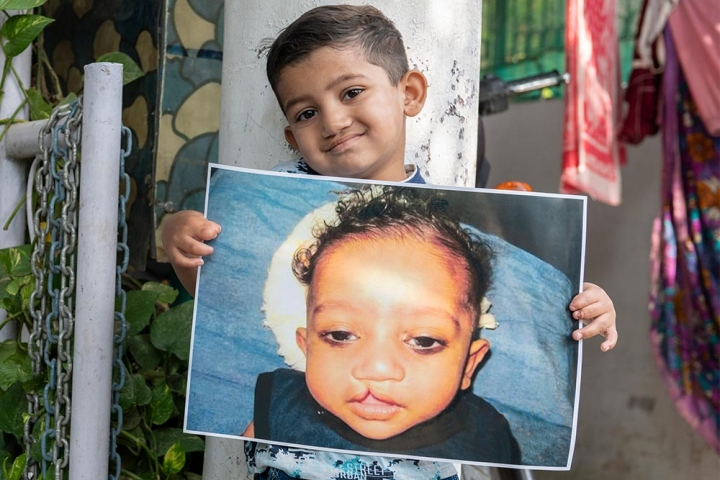 Saksham is holding an image of himself before cleft surgery