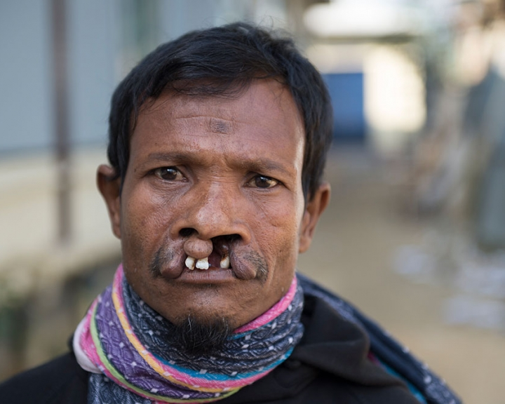 man with a cleft lip in Bangladesh