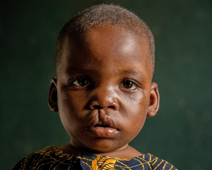Child in need of cleft lip surgery from Nigeria
