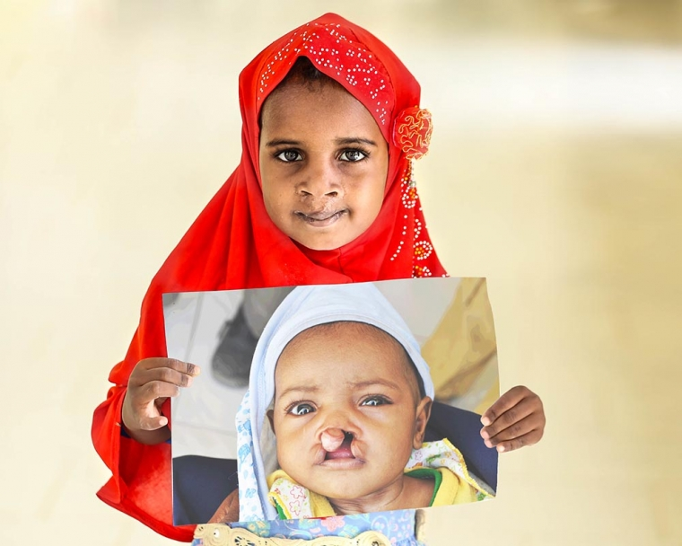 Aayan holds image of herself before cleft lip surgery