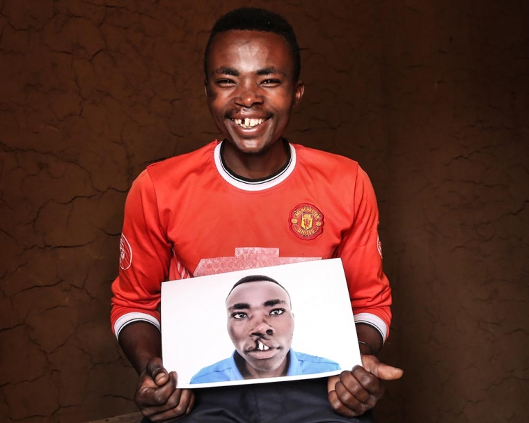 Claude holds image of himself before cleft surgery