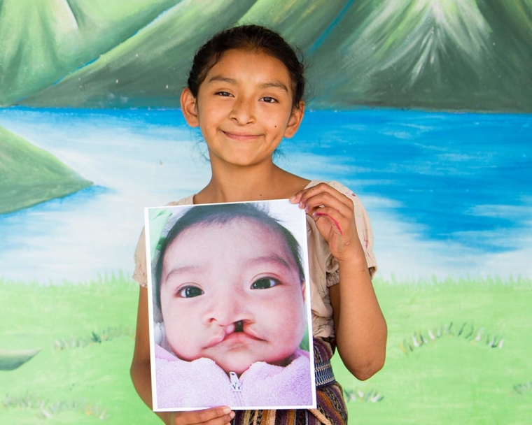 Valery holds the image of herself before cleft lip surgery